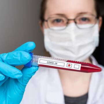 На Вінниччині зафіксовано 21 новий випадок захворювання на коронавірус