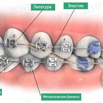 Виправлення прикусу зубів брекетами