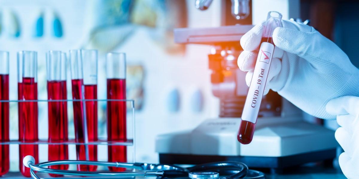 Понад чотириста нових випадків COVID-19 за добу на Вінниччині